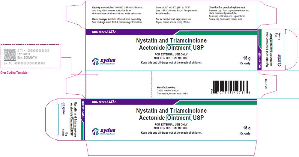 Nystatin and Triamcinolone Acetonide Ointment