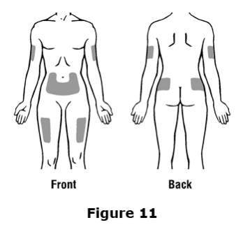 Do not inject Epogen into an area that is tender, red, bruised, hard, or has scars or stretch marks.  Recommended sites for injection are shown in Figure 11 below, including: ○ The outer area of the upper arms  ○ The abdomen (except for the 2-inch area around the navel) ○ The front of the middle thighs ○ The upper outer area of the buttocks
