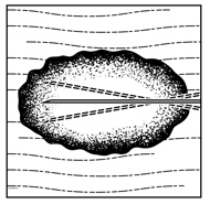 Figure 3: Injection administration for nodal lesions