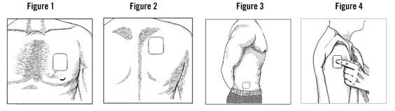 Applying a Fentanyl Transdermal System Figure 1-4