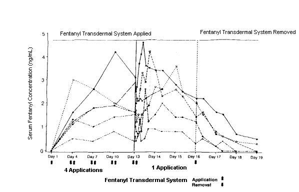 Fentanyl Transdermal System Applied