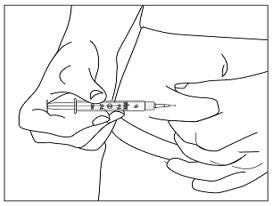 Menopur (Follitropin And Luteinizing Hormone) Kit [Ferring Pharmaceuticals Inc.]