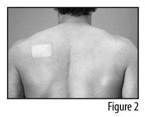 Figure 2 - Patch applied to back