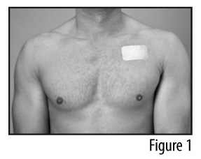 Figure 1 - Patch applied to chest