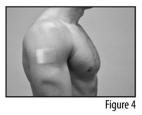 Figure 4 - Patch applied to shoulder