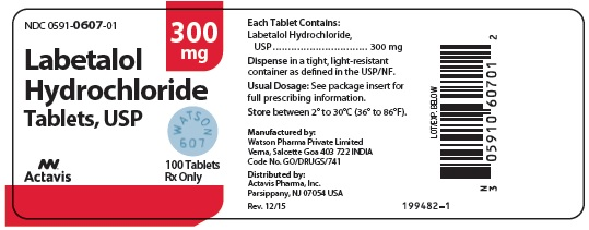 Labetalol Hydrochloride Tablets