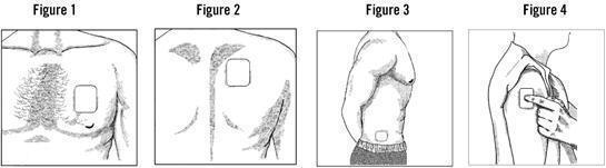Patch on chest, back, flank or upper arm. Figure 1-4
