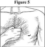 Clipping hair Figure 5
